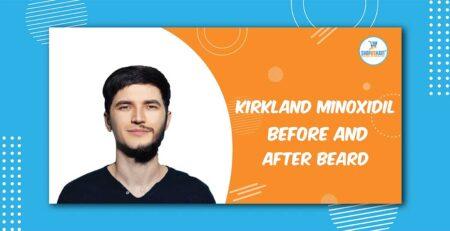 Kirkland Minioxidil before and after beard