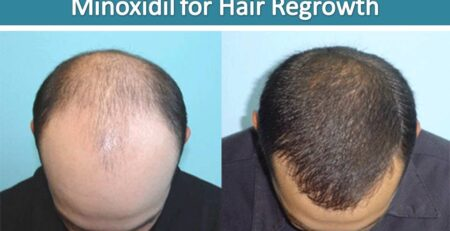 Before and after effect of Kirkland minoxidil for hair Regrowth