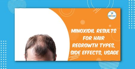 Minoxidil Results for Hair Regrowth Types, side effects, usage